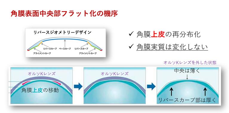 近視進行抑制治療オルソケラトロジー